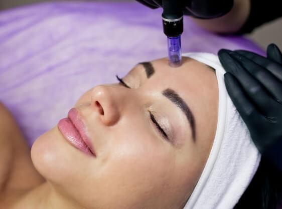 microneedling-soin de la peau